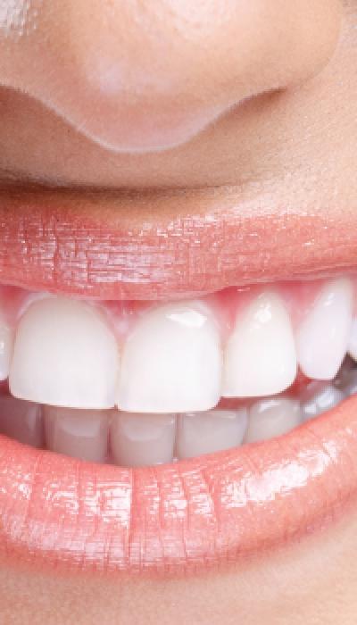 Cosa mangiare per un sorriso bianco